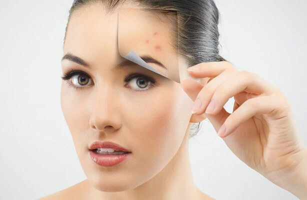 scars-acne-scars-laser-removal Cicatrices et cicatrices d'acné